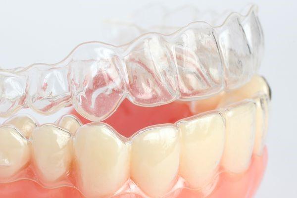 マウスピース矯正|南相馬市の今村歯科・矯正歯科医院