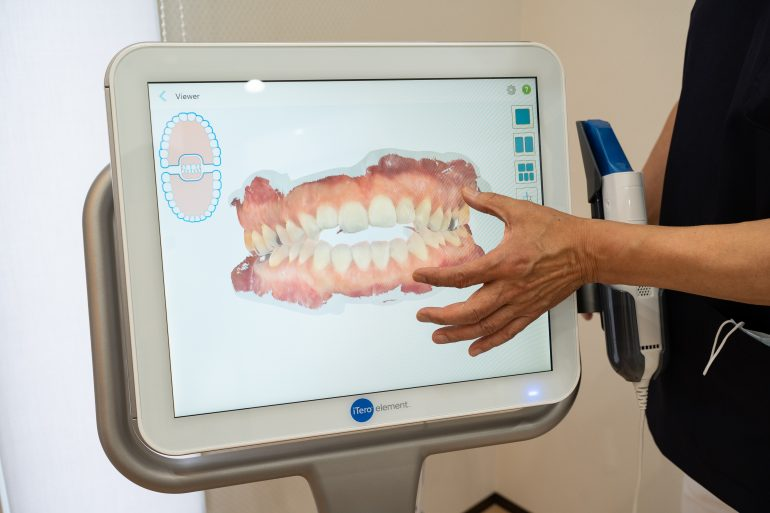 光学3DスキャナーiTero element導入|南相馬市の今村歯科・矯正歯科医院