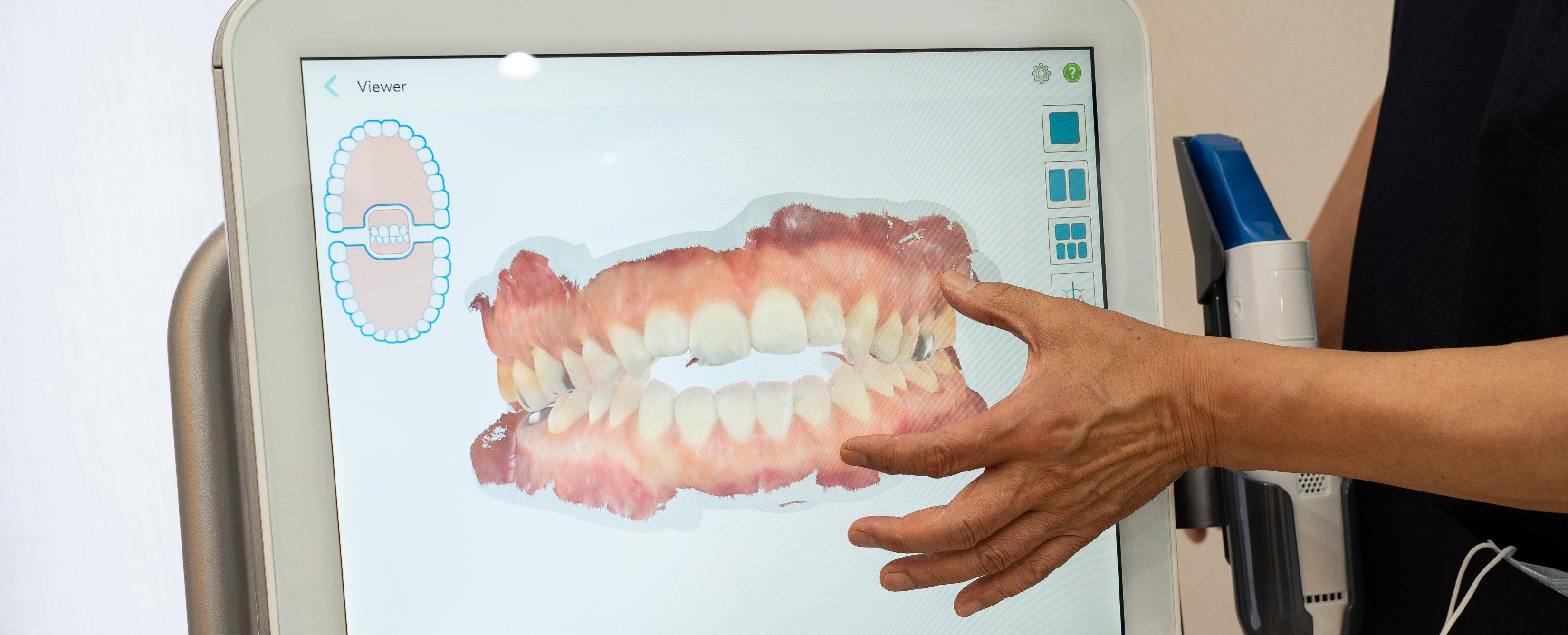 歯並びチェック|福島県浜通りの今村歯科・矯正歯科医院